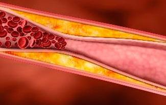 Desarrollan vacuna intranasal contra la aterosclerosis